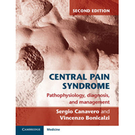 Central Pain Syndrome: Pathophysiology, Diagnosis and Management (BOK)