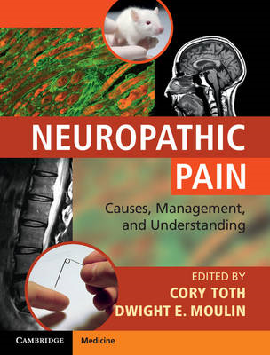 Neuropathic Pain: Causes, Management and Understanding (BOK)