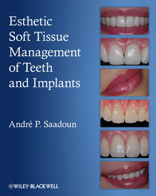 Esthetic Soft Tissue Management of Teeth and Implants (BOK)