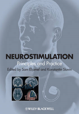 Neurostimulation: Principles and Practice (BOK)