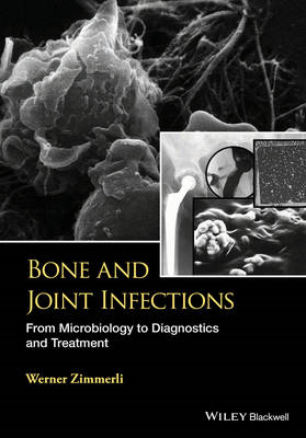 Bone and Joint Infections (BOK)