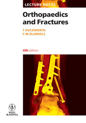 Lecture Notes: Orthopaedics and Fractures (BOK)