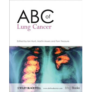 ABC of Lung Cancer (BOK)