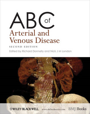 ABC of Arterial and Venous Disease (BOK)