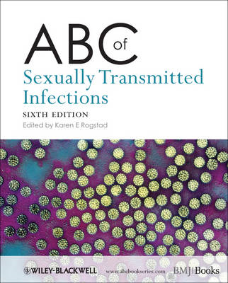 ABC of Sexually Transmitted Infections 6E (BOK)