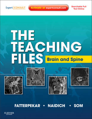 The Teaching Files: Brain and Spine: Expert Consult - Online and Print (BOK)