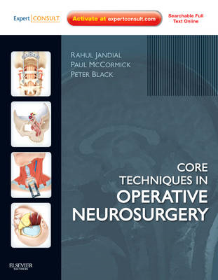 Core Techniques in Operative Neurosurgery (BOK)