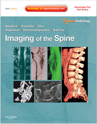 Imaging of the Spine (BOK)