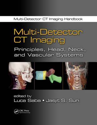 Multi-Detector CT Imaging: Principles, Head, Neck, and Vascular Systems (BOK)