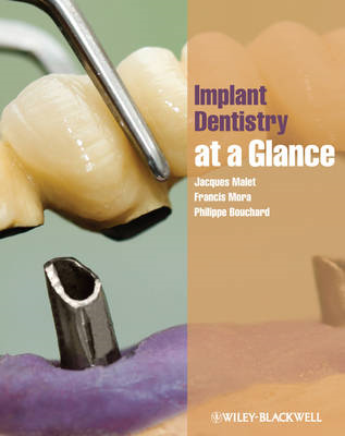 Implant Dentistry At-a-Glance (BOK)