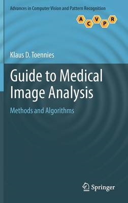 Guide to Medical Image Analysis: Methods and Algorithms (BOK)