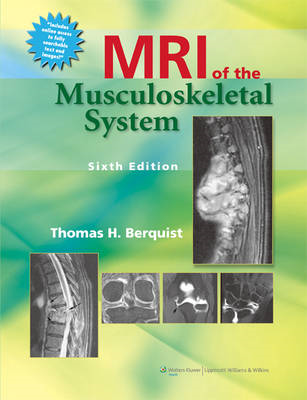 MRI of the Musculoskeletal System (BOK)