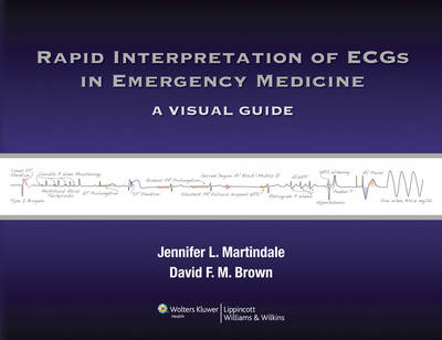 Rapid Interpretation of ECGs in Emergency Medicine (BOK)