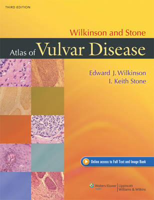 Wilkinson and Stone Atlas of Vulvar Disease (BOK)