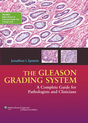 The Gleason Grading System: A Complete Guide for Pathologist and Clinicians (BOK)