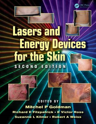 Lasers and Energy Devices for the Skin (BOK)