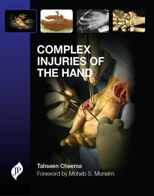Complex Injuries of the Hand (BOK)