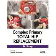 Complex Primary Total Hip Replacement (BOK)